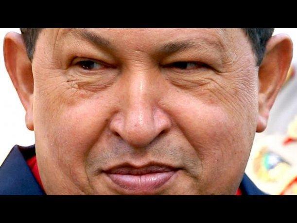 Hugo Chávez sufrió muerte cerebral